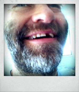 donate to Chris T. Wilson tooth fund faceplant to implant